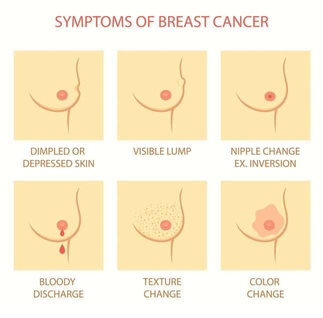 Breast cancer happens when the cells in the lobules (milk producing glands)  or the ducts become abnormal and divide overwhelmingly.