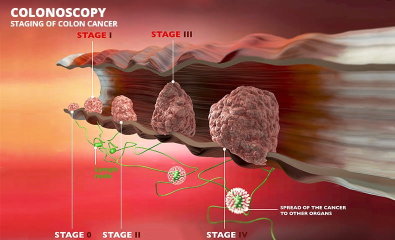 Colon Cancer Treatment Sypmtoms Causes Amp Specialists