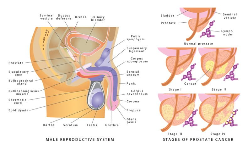 Prostate Cancer Treatment, Sypmtoms, Causes & Specialists